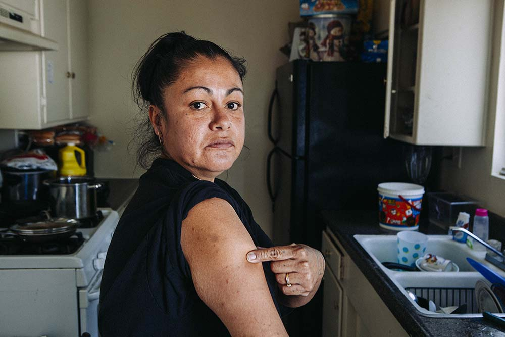 Nancy Romero points to her bedbug bites. She keeps dead insects in a container to show River Glen Apartments managers.